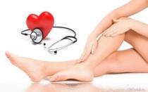 Как лечить отеки ног при сердечной недостаточности