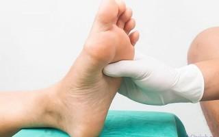 Опасность отека ног при сахарном диабете и действия по его снятию