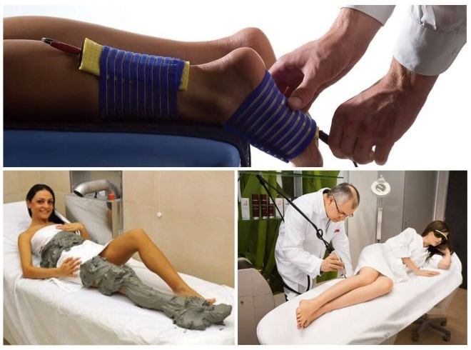 Виды физиотерапии