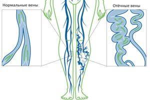 Причины венозной недостаточности у женщины