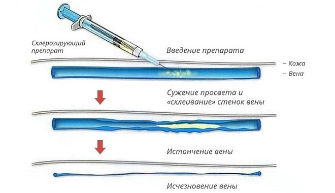 Врач вводит склерозирующий препарата