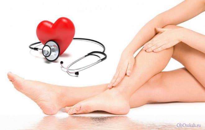 Отёкшие ноги и больное сердце