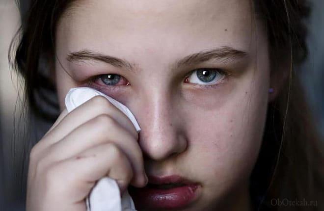 Аллергическая реакция на лице